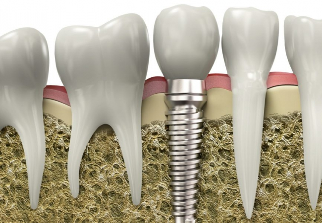 Cấy ghép Implant răng