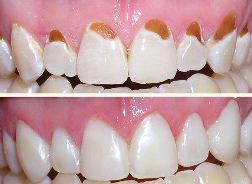Những nguyên nhân gây hại men răng